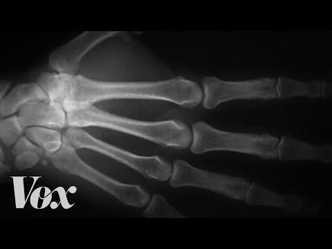 Еве што се случува со вашите прсти кога ги пукате (крцкате)