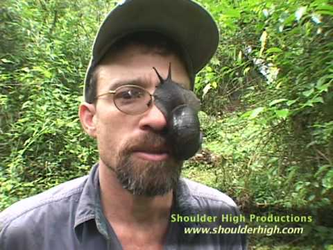Dr. Brian Fisher - Snail Attack - YouTube