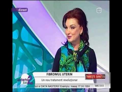 DR. ZORELA SGARBURA -  Fibromul uterin -noutati ( 2)