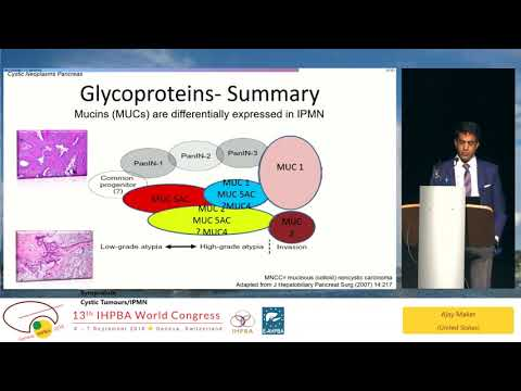 SYM01.1 Cystic Tumours/IPMN