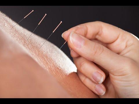 Acupuncture Research #1 - Acupuncture CEU