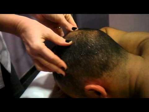 SOS ESTETISTA massaggio al cuoio capelluto