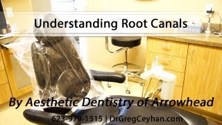 [Understanding Root Canals] Video