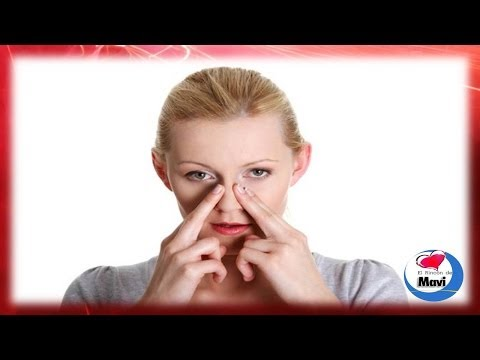 Remedios caseros para tratar y prevenir los polipos nasales - Polipo nasal