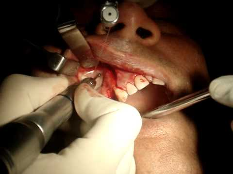 Steps  In Sinus Lift Procedure India Mumbai - MyDentalBoutique