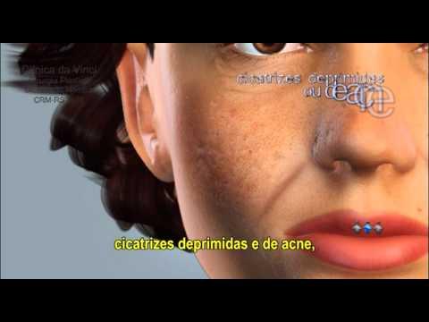 Preenchimento Cutâneo - cirurgia plástica para o rejuvenescimento facial