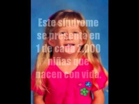 sindrome de turner - YouTube