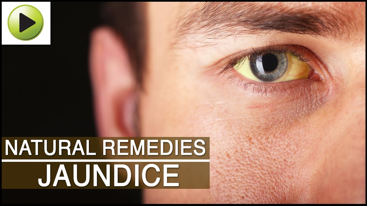 cure eye problems naturally