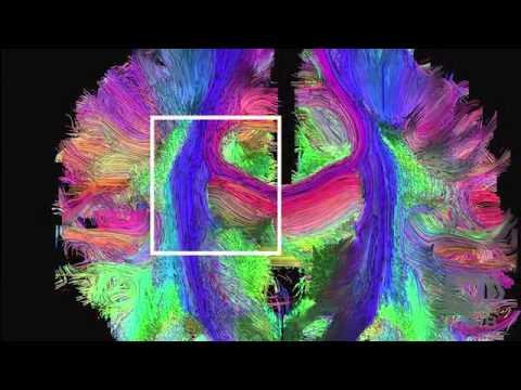 Brain Imaging's Cutting Edge