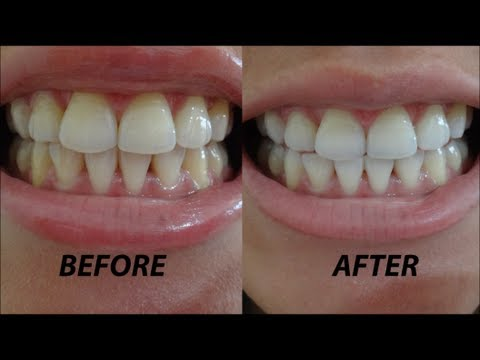 Image Result For Colgate With Whitening Strips