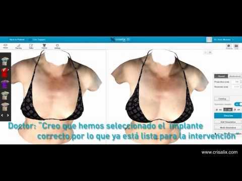 Mira Tú Nueva Apariencia en 3D Antes de la Operación