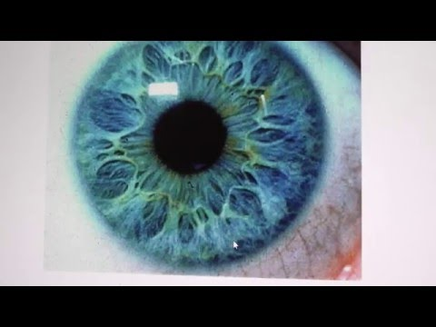 (Iridology) DETOXING and what Both Eyes Look like as of Today