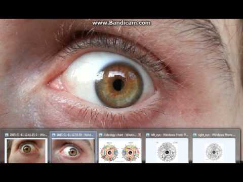 Day 3||Fruit cleanse/water fast/herbal detox||Introduction to iridology