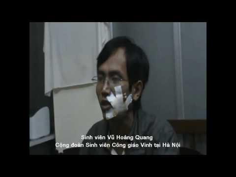 Công an đánh đập,tra tấn Sinh viên Công Giáo VINH - Hà nội