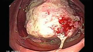 Colonoscopia: Caso De Cancer Del Colon En El Ciego