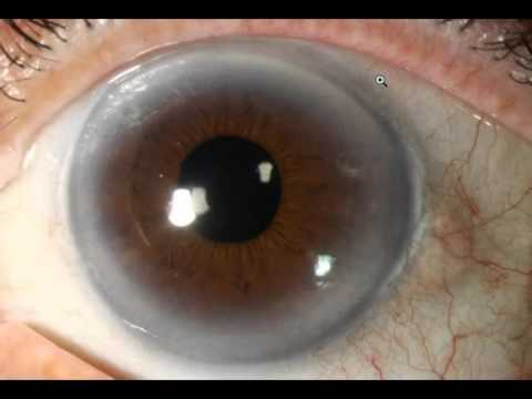 Iridology Lesson#1 Cholesterol / Lymph Rings