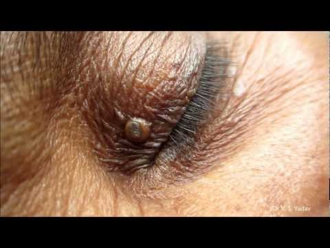 Black Heads On Eyelids- Removal Technique