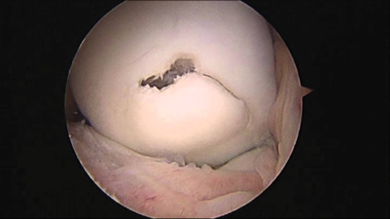 Surgical Correction Of Osteochondritis Dissecans  Ocd  Of The Knee