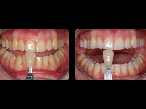 Blanqueamiento dental casero como blanquear los dientes en casa