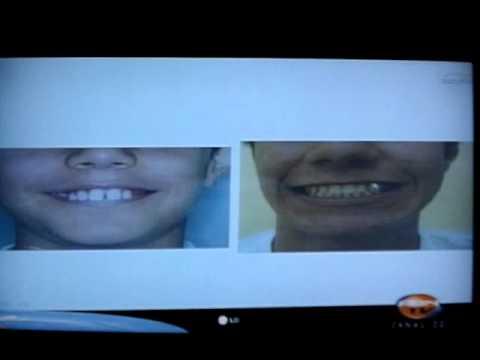 As diferentes idades que a ortodontia atua. 5 PARTE  Entrevista pela ABN  TV  programa TV saúde