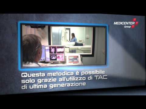 COLONSCOPIA VIRTUALE a Roma - Medicenter Group