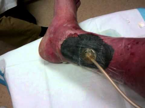 Wound Vac Demonstration -