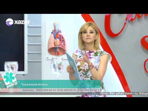 04 07 2017 Hekim ishi Xetai Klinika Cerrah Fleboloq Mehemmed Efendiyev