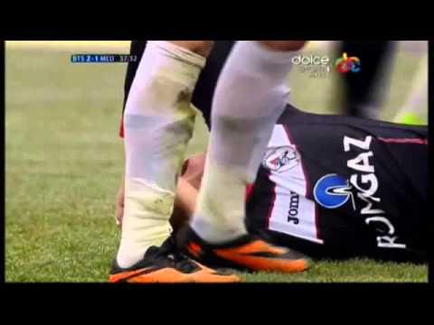 image vidéo  بالفيديو.. فى لقطة مروعة.. مُدافع يكسر قدم المُهاجم إلى نصفين