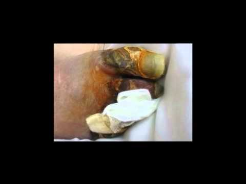 Diabetes 23, Clinical Cases of Diabetic Feet