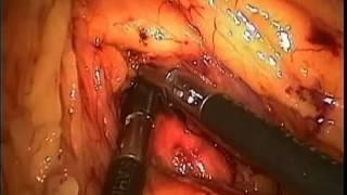 Peritonitis Quilosa Por Carcinomatosis Abdominal