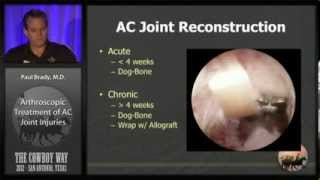 AC Joint Reconstruction: Dog-Bone Technique