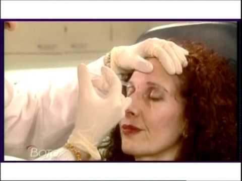 Công nghệ làm đầy bằng Botox tại Beauty Medi