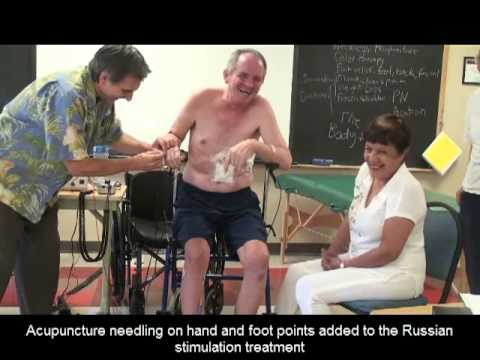 Post-Stroke Treatment with Microcurrent and Acupuncture