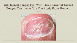 Kill Toenail Fungus Fast With This Powerful Toenail Fungus ...