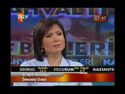 ATV Kahvaltı Haberleri - Kışın Oluşan Cilt Problemleri