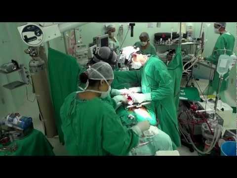 Cirurgia Cardíaca na Santa Casa de Misericórdia de Itabuna