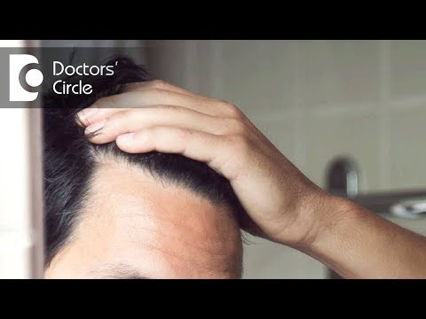 Can home remedies cure baldness? - Dr. Rajeshwar Reddy