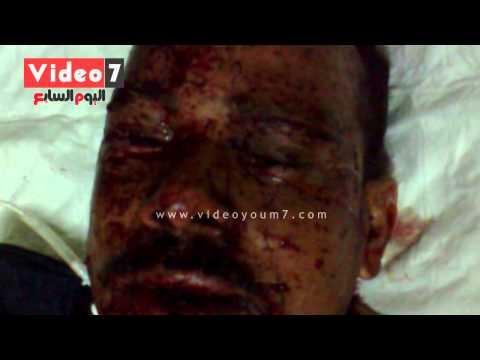 image vidéo رقيب شرطة مصاب يروي لحظة هجوم السيارة المفخخة