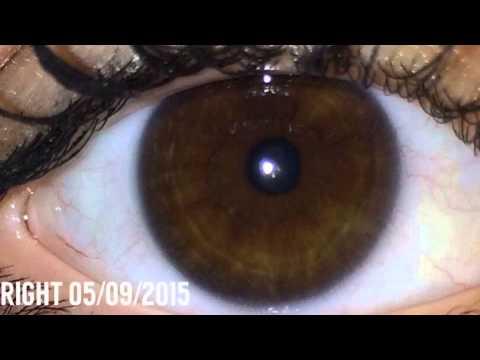 ✿ Iridology ✿ - Eye Review 49 ★★★★★