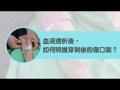 血液透析後,穿刺傷口要如何照護呢?
