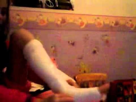 How To Make Cast For Your Leg!