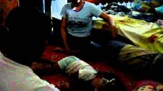 Rana Demam Kejang view on youtube.com tube online.