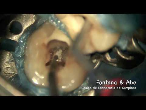 Equipe de Endodontia de Campinas / Remoção de Nódulo Pulpar - Removing Pulp Stone