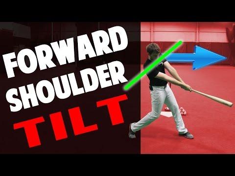 Forward Shoulder Tilt | The