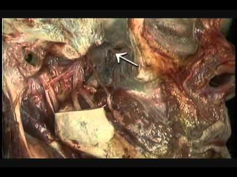 Neuroanatomia   Nervio  Trigemino