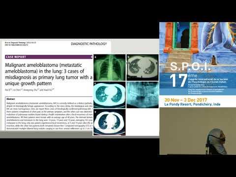 Cas clinique Ameloblastome pulmonaire Dr N Soowun Mauritius