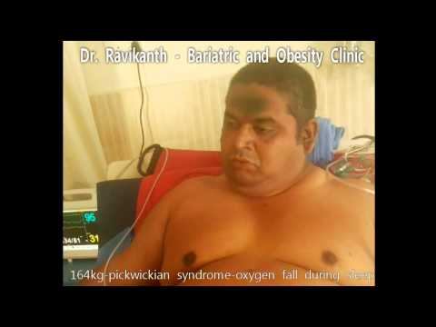 Obstructive Sleep Apnoea with Obesity Hypoventilation Syndrome(pickwickian syndrome)