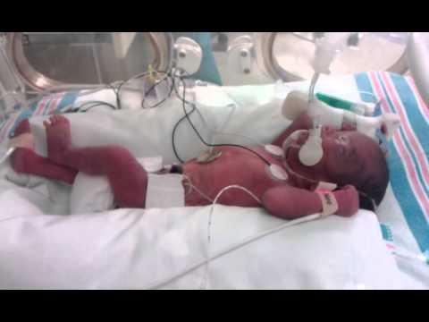 Baby born at 27 weeks car tuning