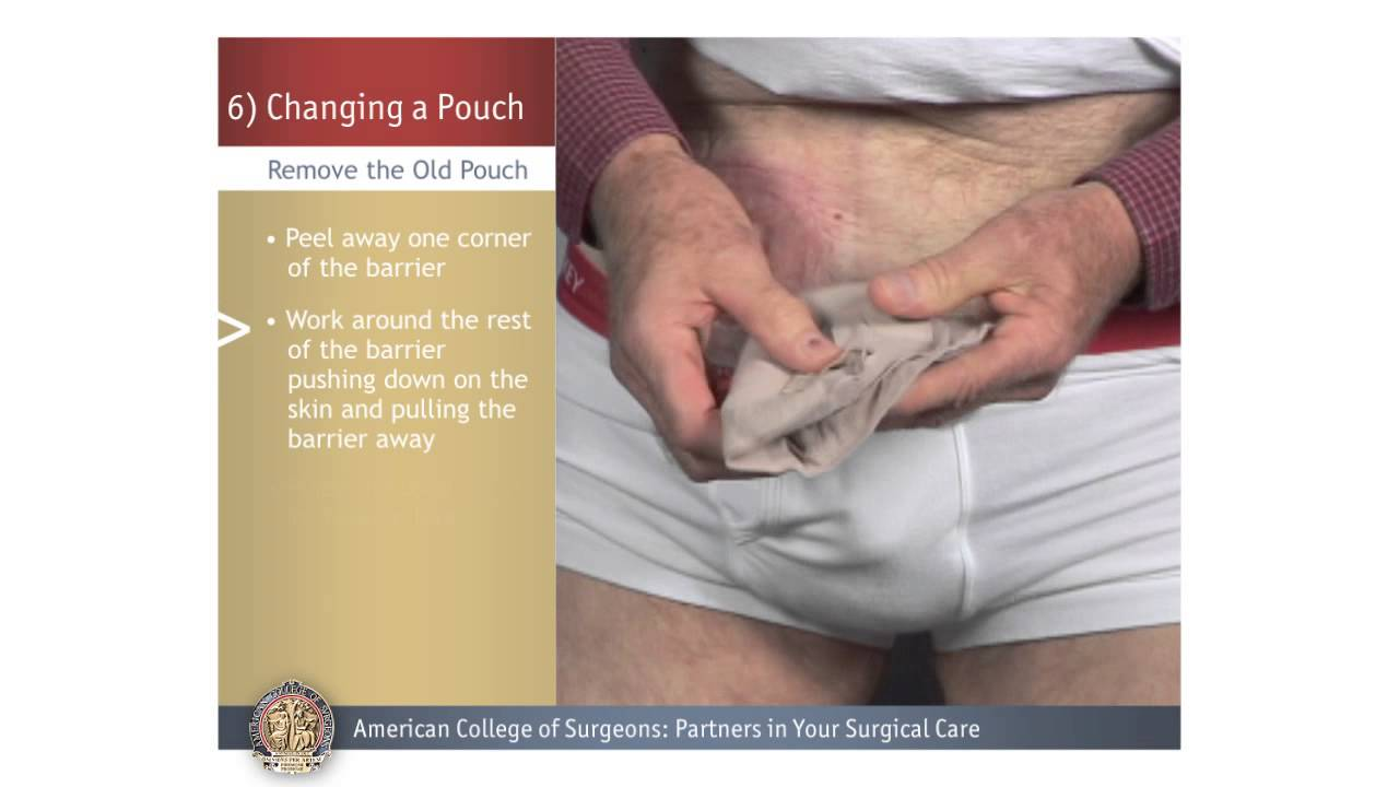 urostomy changing a pouch