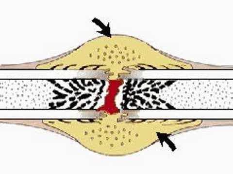 How the Body Works: Repair of Bone